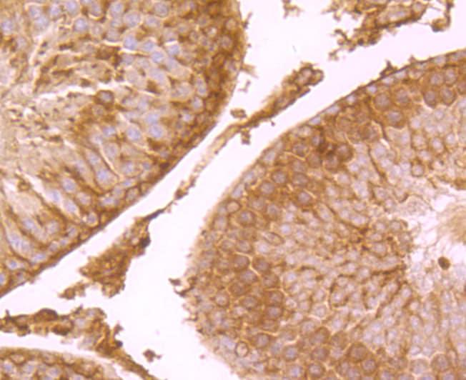 SCN9A Antibody in Immunohistochemistry (Paraffin) (IHC (P))
