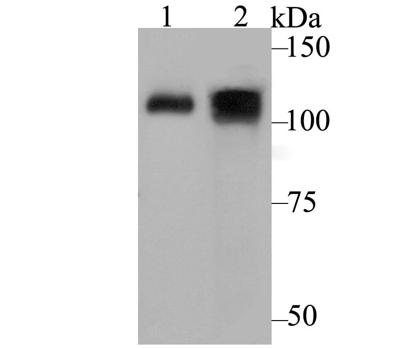 ATP2A1 Antibody in Western Blot (WB)