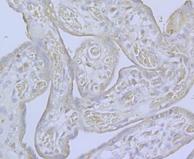 CaV2.3 Antibody in Immunohistochemistry (Paraffin) (IHC (P))