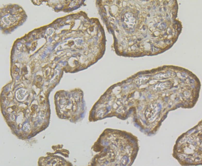RyR3 Antibody in Immunohistochemistry (Paraffin) (IHC (P))
