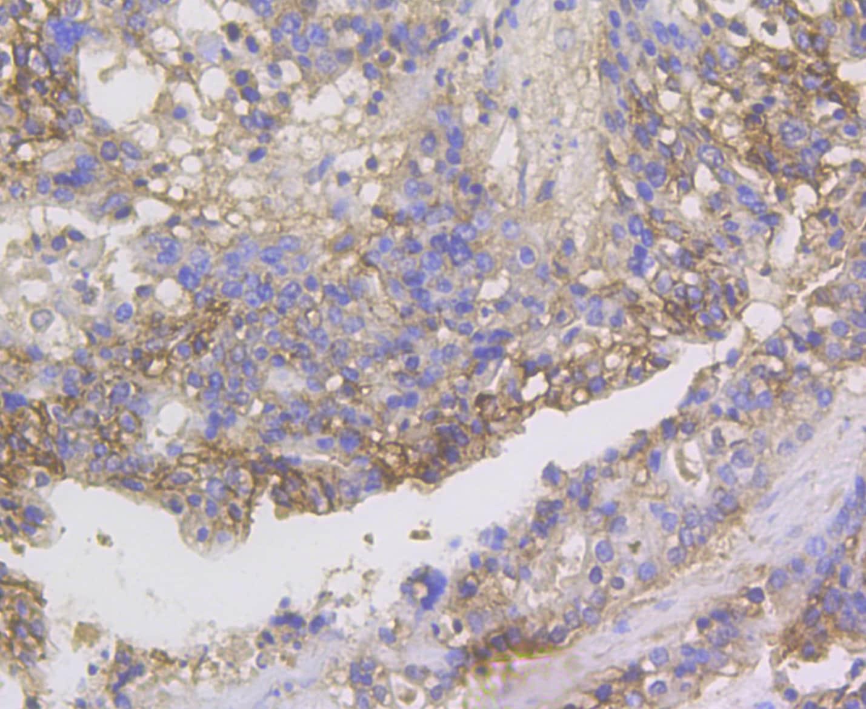 CDH17 Antibody in Immunohistochemistry (Paraffin) (IHC (P))