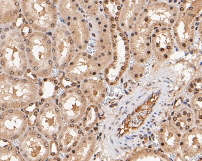 KVbeta1 (KCNAB1) Antibody in Immunohistochemistry (Paraffin) (IHC (P))