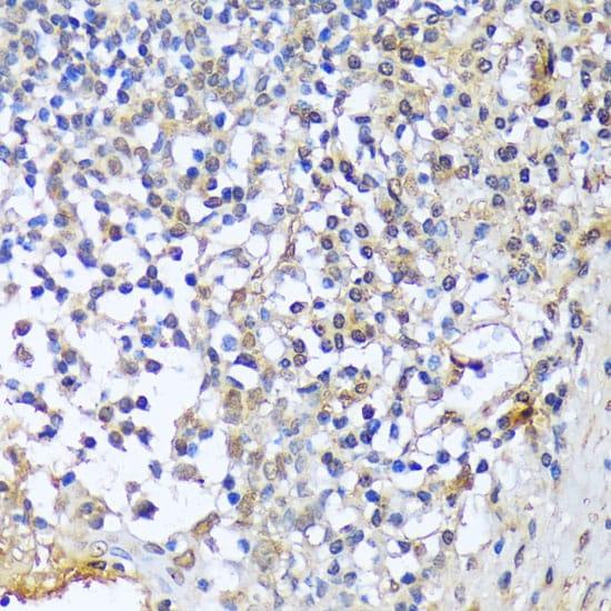 A1CF Antibody in Immunohistochemistry (Paraffin) (IHC (P))