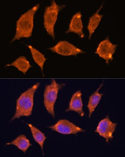 ATF5 Antibody in Immunocytochemistry (ICC)