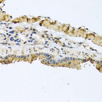 ATP2C1 Antibody in Immunohistochemistry (Paraffin) (IHC (P))