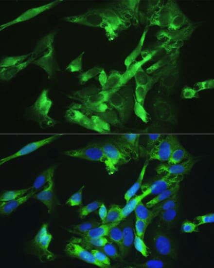 BMPR2 Antibody in Immunocytochemistry (ICC/IF)