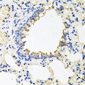 CALU Antibody in Immunohistochemistry (Paraffin) (IHC (P))