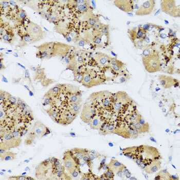 CHIC2 Antibody in Immunohistochemistry (Paraffin) (IHC (P))