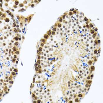 CIRBP Antibody in Immunohistochemistry (Paraffin) (IHC (P))