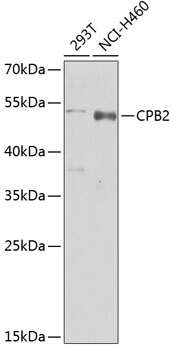 CPB2 Antibody in Western Blot (WB)