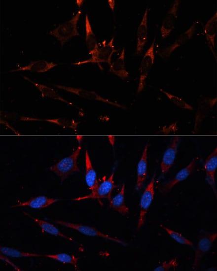 CPT1B Antibody in Immunocytochemistry (ICC/IF)
