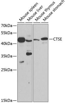 Cathepsin E Antibody in Western Blot (WB)