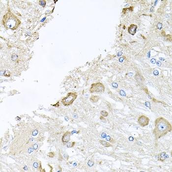 Cathepsin K Antibody in Immunohistochemistry (Paraffin) (IHC (P))