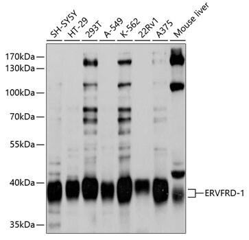 HERV-FRD Antibody in Western Blot (WB)
