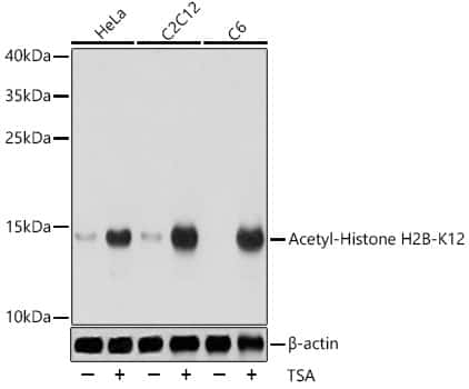 H2BK12ac Antibody in Western Blot (WB)