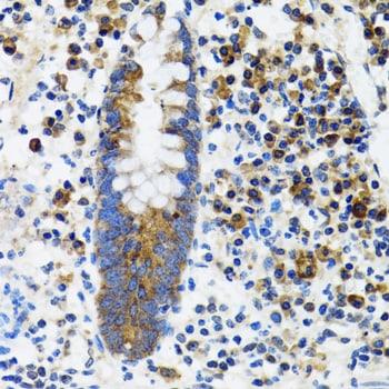 HYOU1 Antibody in Immunohistochemistry (Paraffin) (IHC (P))
