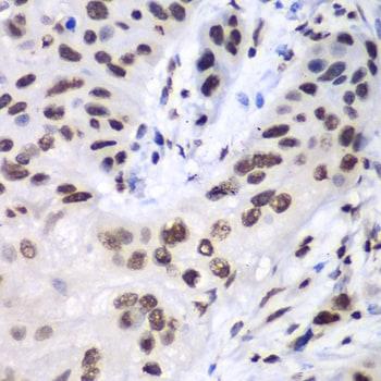 LIG3 Antibody in Immunohistochemistry (Paraffin) (IHC (P))