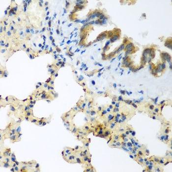 LLGL2 Antibody in Immunohistochemistry (Paraffin) (IHC (P))