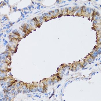 ARD1A Antibody in Immunohistochemistry (Paraffin) (IHC (P))