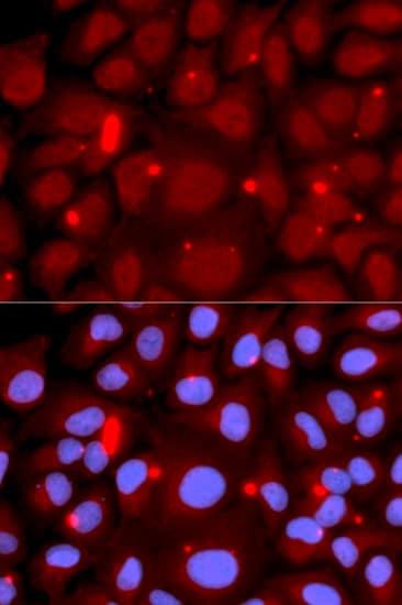 PADI4 Antibody in Immunocytochemistry (ICC/IF)