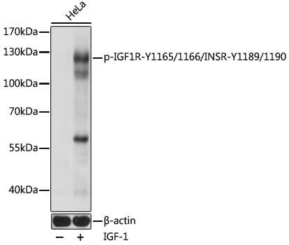 Phospho-IR/IGF1R (Tyr1165, Tyr1166, Tyr1189, Tyr1190) Antibody in Western Blot (WB)