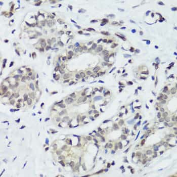 Phospho-p38 MAPK alpha (Tyr182) Antibody in Immunohistochemistry (Paraffin) (IHC (P))