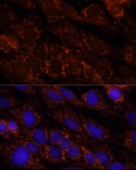 PI4KB Antibody in Immunocytochemistry (ICC)