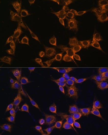 RAMP1 Antibody in Immunocytochemistry (ICC/IF)