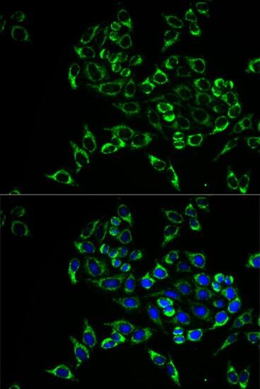 RANKL Antibody in Immunocytochemistry (ICC)