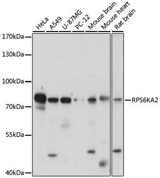 RSK3 Antibody in Western Blot (WB)