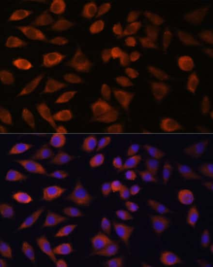 TRIM47 Antibody in Immunocytochemistry (ICC/IF)