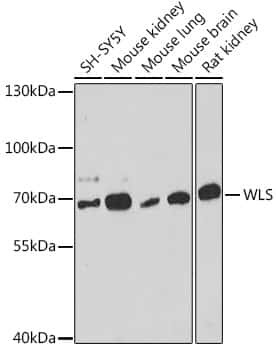GPR177 Antibody in Western Blot (WB)