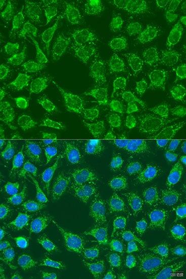 WNT7B Antibody in Immunocytochemistry (ICC)