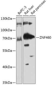 ZNF460 Antibody in Western Blot (WB)