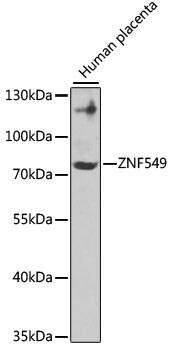 ZNF549 Antibody in Western Blot (WB)