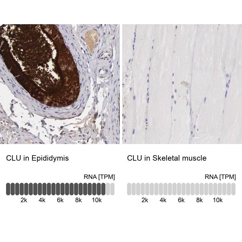 Apolipoprotein J Antibody in Immunohistochemistry (IHC)