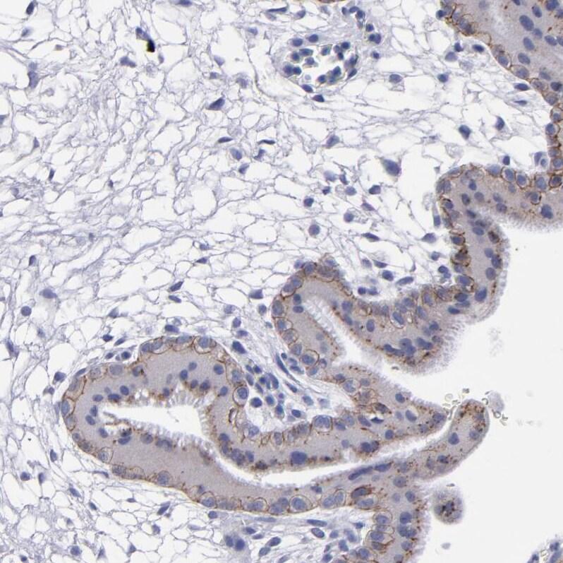 P-cadherin Antibody in Immunohistochemistry (IHC)