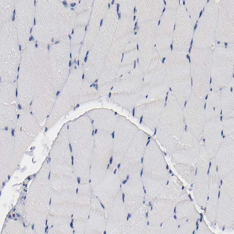 IL-18 Antibody in Immunohistochemistry (IHC)