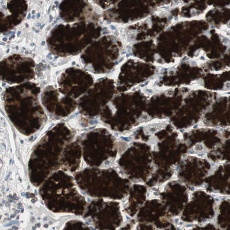 ZMPSTE24 Antibody in Immunohistochemistry (IHC)