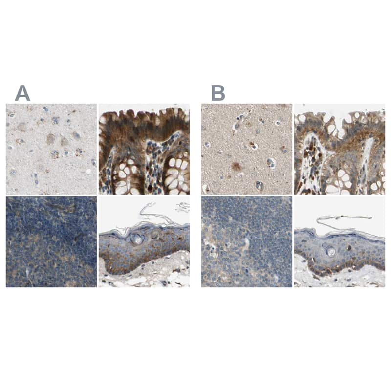 RON Antibody in Immunohistochemistry (IHC)
