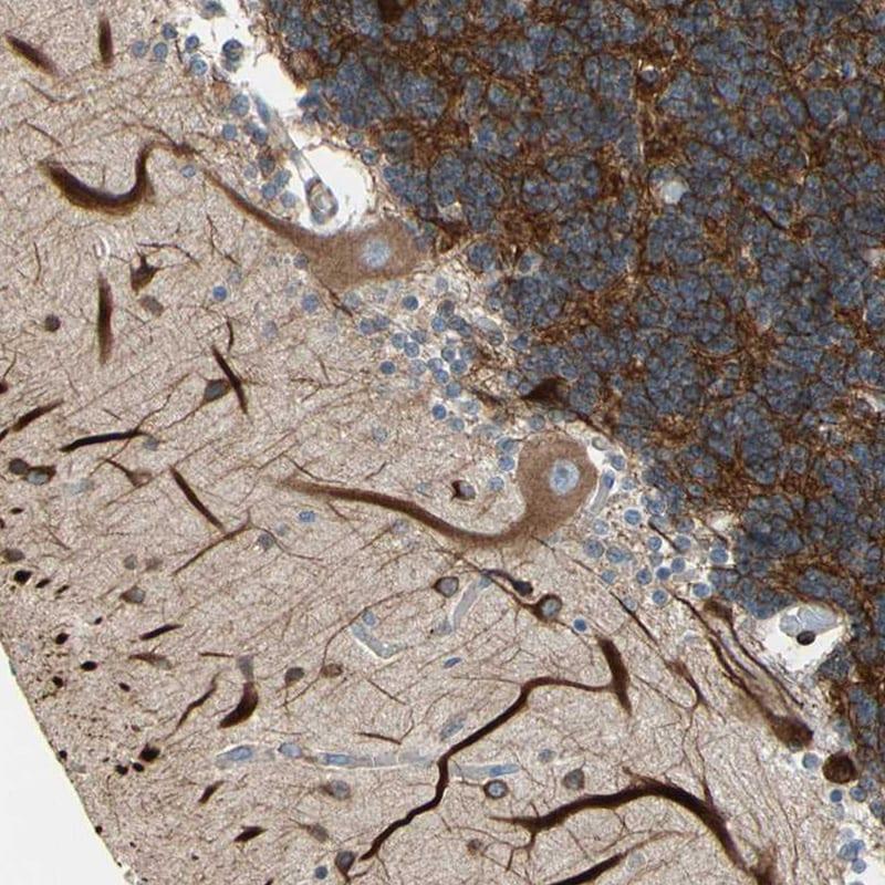 MAP2 Antibody in Immunohistochemistry (IHC)