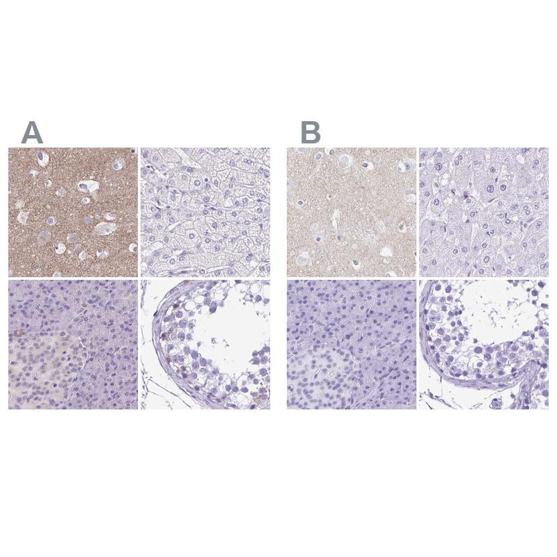 Synaptotagmin 1 Antibody in Immunohistochemistry (IHC)
