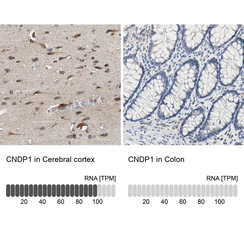 CNDP1 Antibody in Immunohistochemistry (IHC)