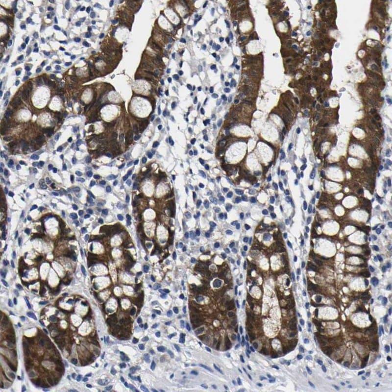 Caspase 6 Antibody in Immunohistochemistry (IHC)