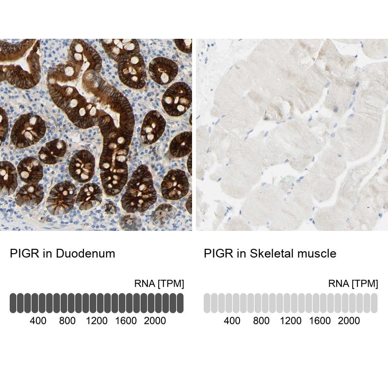 PIGR Antibody in Immunohistochemistry (IHC)