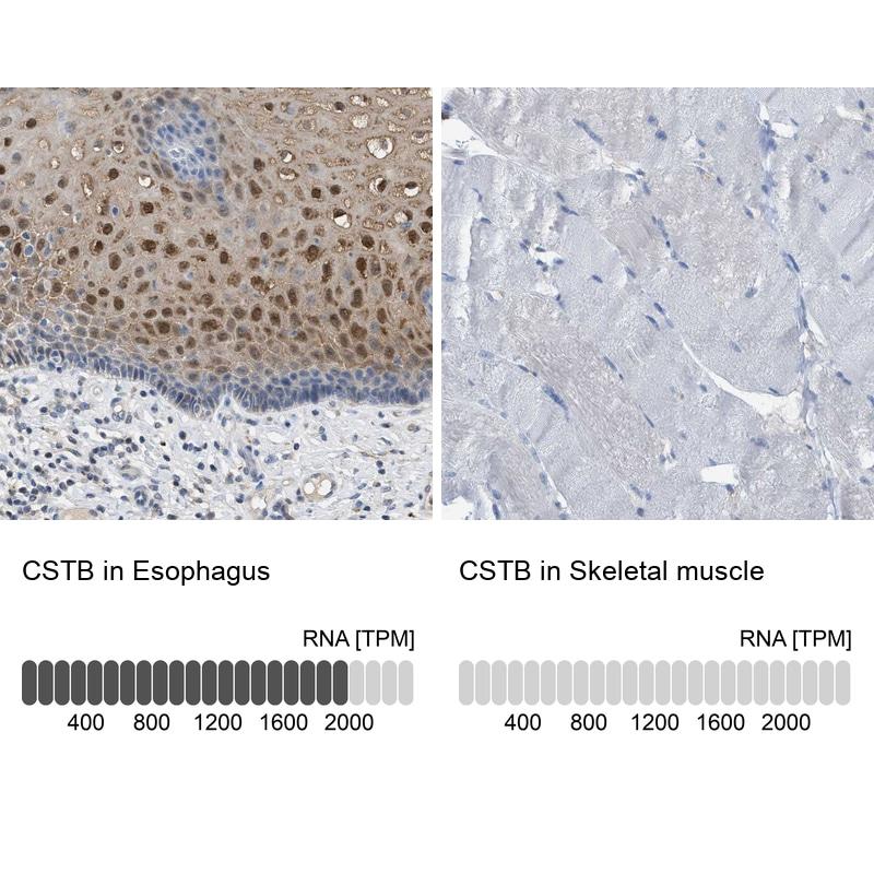 Cystatin B Antibody in Immunohistochemistry (IHC)