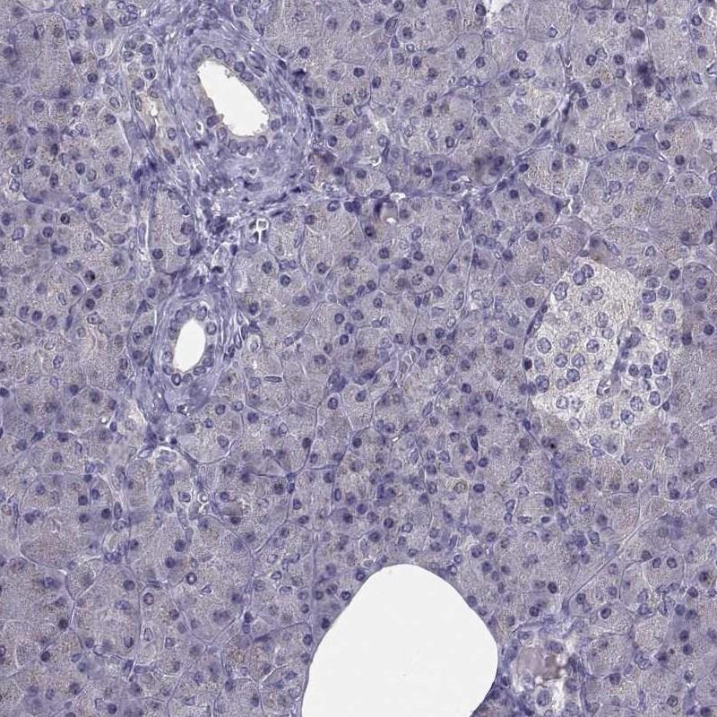 Angiopoietin 1 Antibody in Immunohistochemistry (IHC)
