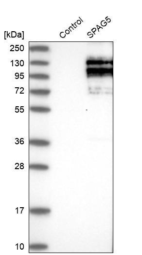 SPAG5 Antibody in Western Blot (WB)
