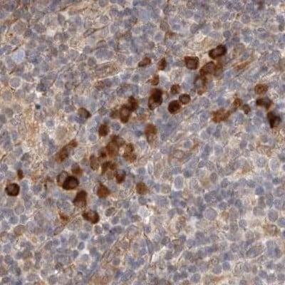 HRD1 Antibody in Immunohistochemistry (IHC)