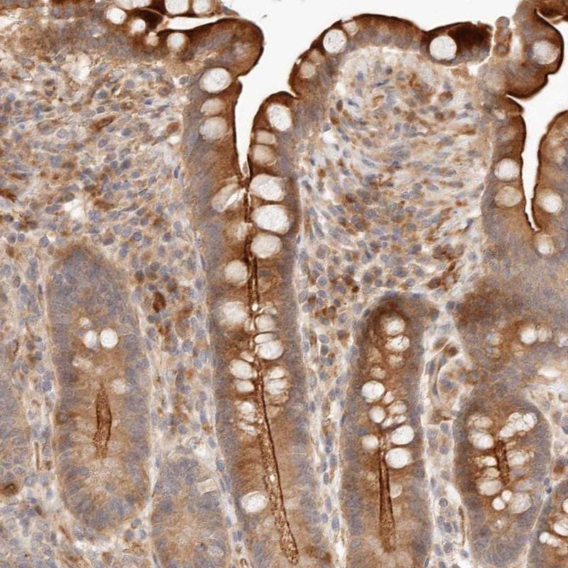 IL1R2 Antibody in Immunohistochemistry (IHC)